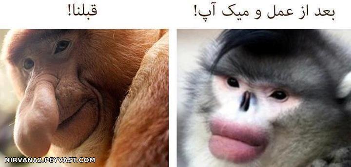 عکس خنده دار از قیافه دخترا قبل و بعد عمل